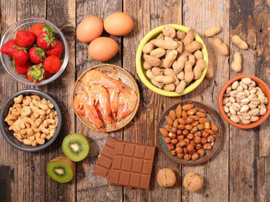 تغذیه و آلرژی های غذایی